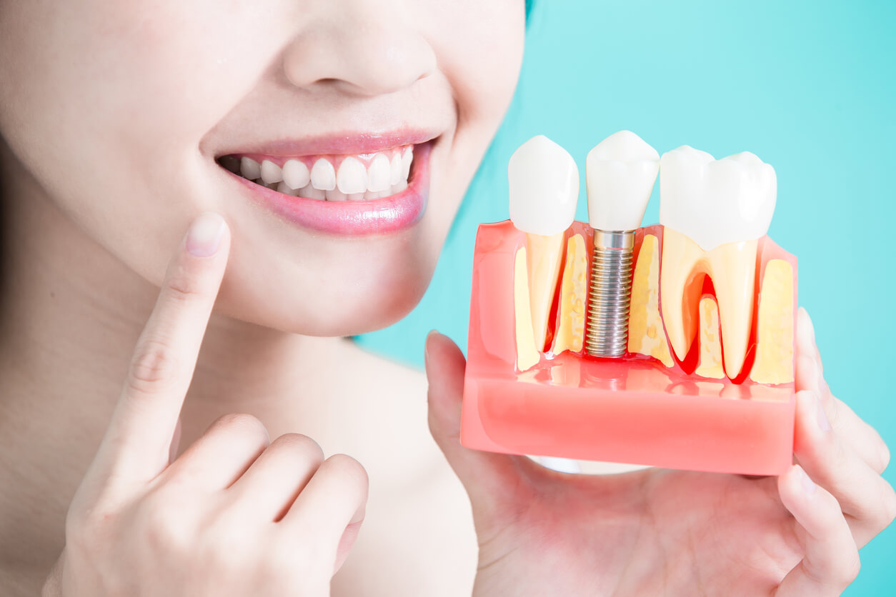 Close up of a woman pointing to her smile and holding an example of how a crown implant looks compared to regular teeth below the root.